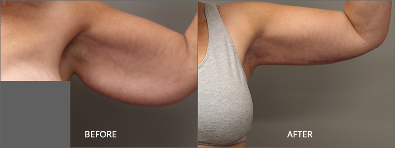Arm Lift Surgery - Before and After