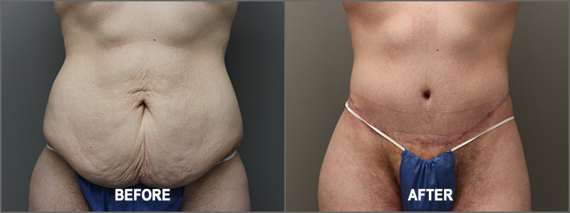 Male Belt Lipectomy Surgery - Before and After
