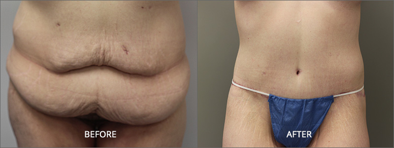 Female Belt Lipectomy Surgery - Before and After