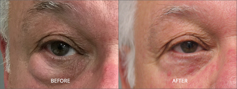 Blepharoplasty Lower Eyelid Surgery - Before and After
