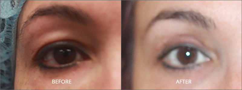 Blepharoplasty Surgery - Before and After