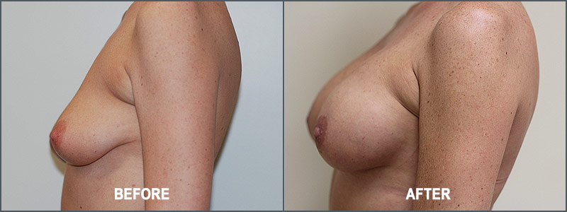 Breast Augmentation Surgery - Before and After