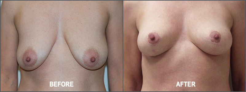 Breast Lift Surgery - Before and After