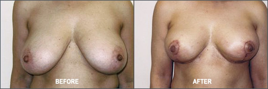 Breast Reduction Surgery - Before and After