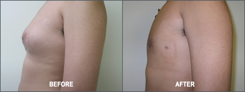 Gynecomastia Male Breast Reduction Surgery - Before and After