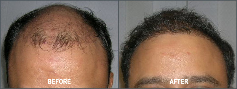 Hair Transplant Surgery - Before and After