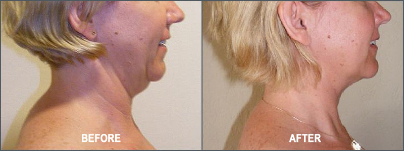 Liposuction Surgery - Before and After