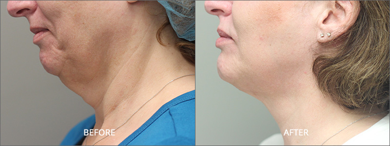 Neck Lift Surgery - Before and After