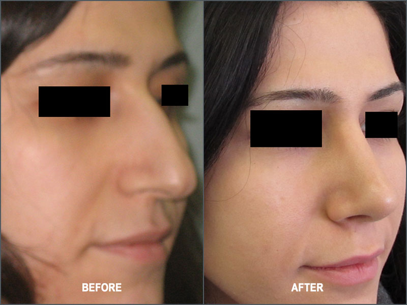 Rhinoplasty Surgery - Before and After
