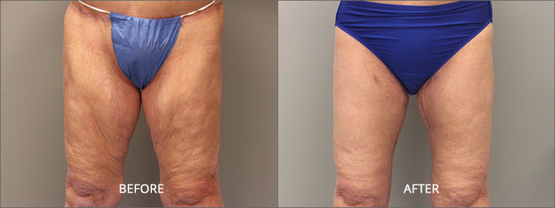 Thigh Lift Surgery - Before and After
