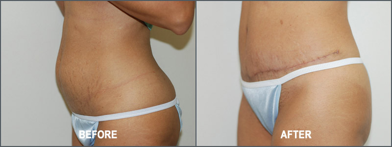 Tummy Tuck Surgery - Before and After